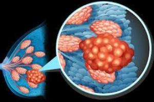 Câncer de mama poderá ser detectado pelo sangue