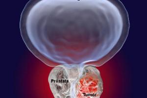Câncer de próstata poderá ser detectado pelo sangue